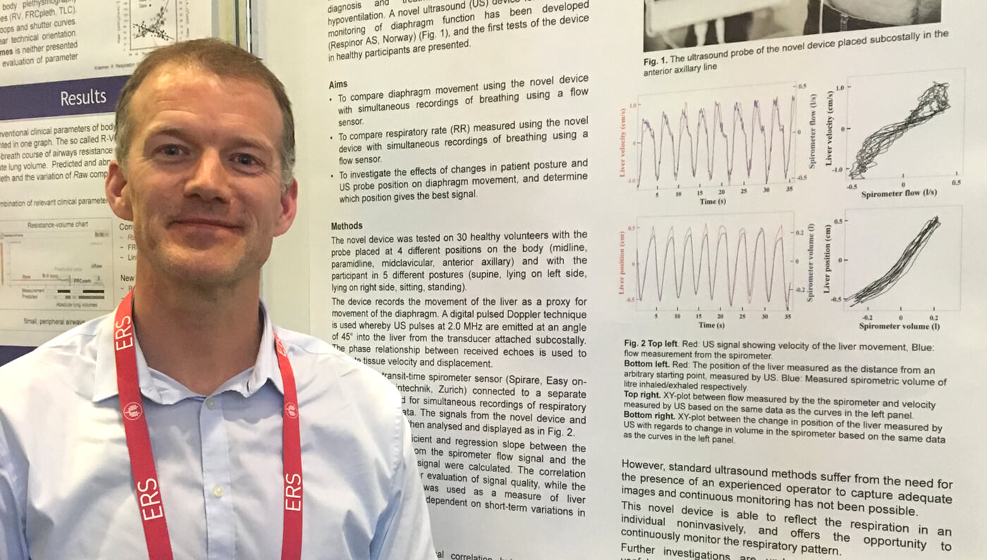 Test of novel device to measure respiratory function presented at international conference in Milan